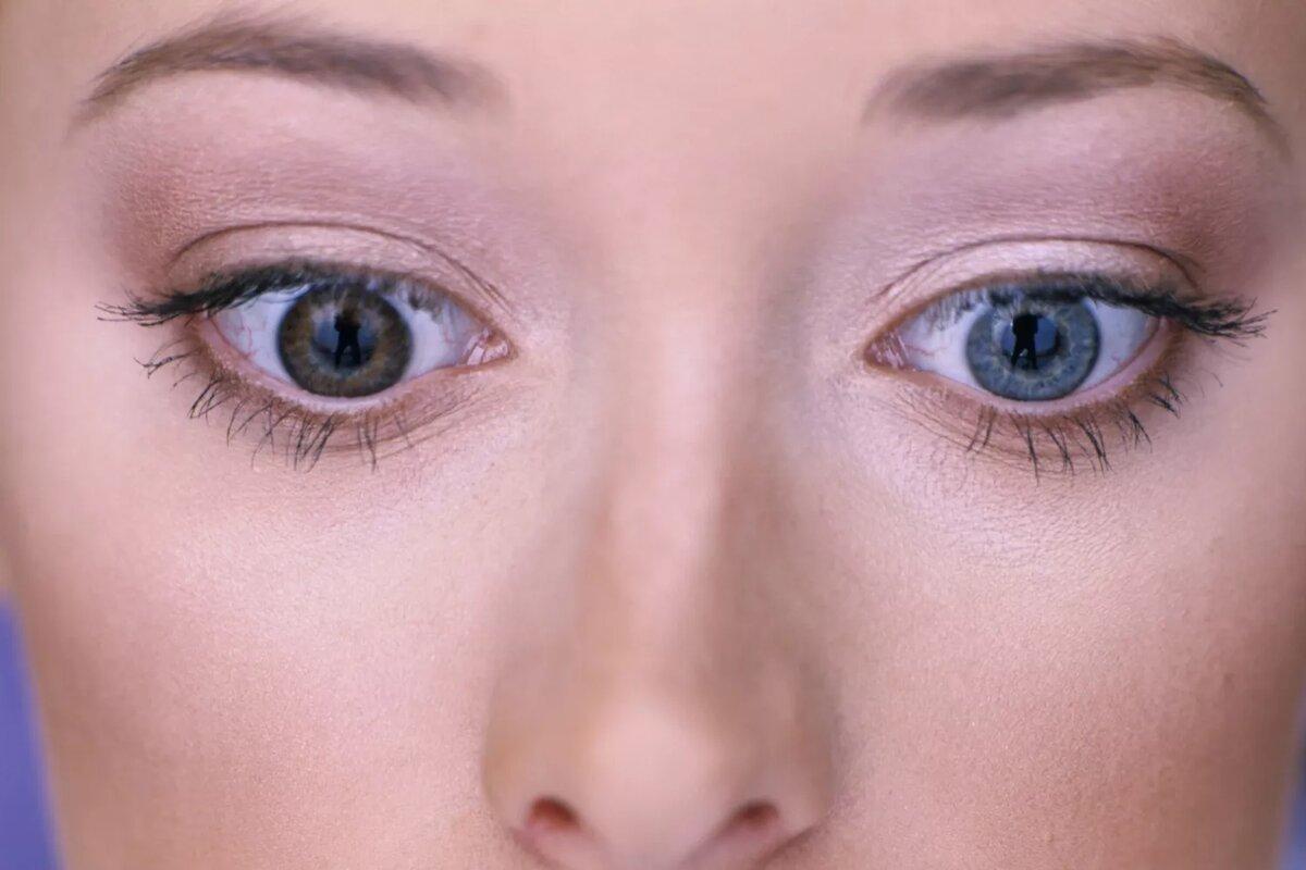 При гетерохромии ирисы бывают разных цветов. У этой женщины один карие глаза и один синий глаз.Марк Селен / Фотолаборатория / Getty Images